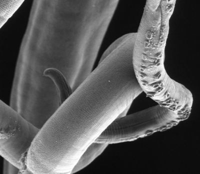 black and white image of a whipworm